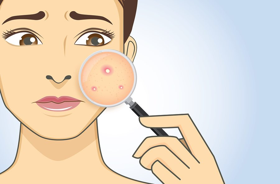 Best Anti-Acne Skin Care Tips