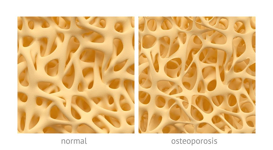 What to expect in a bone density test